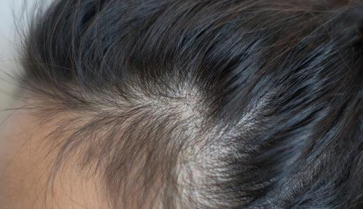 頭皮の色で健康状態が分かる!あなたの頭皮は大丈夫ですか?
